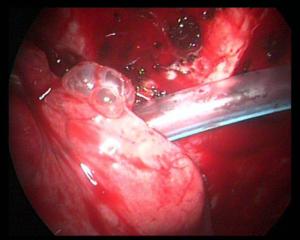 Image médicale : Pneumothorax