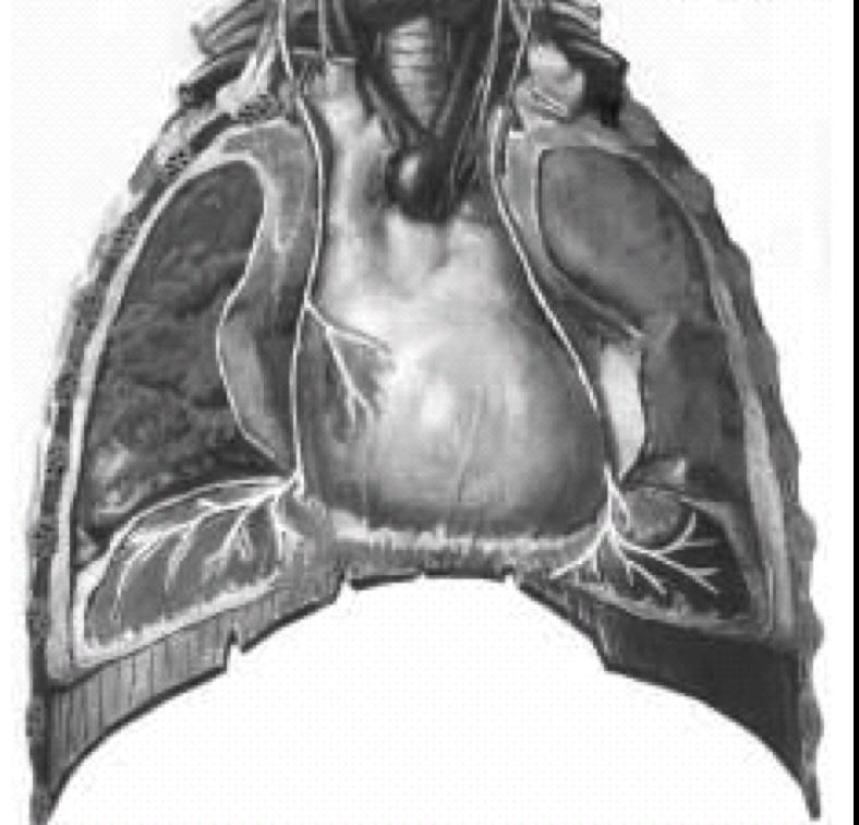 Image médicale : Maladie du diaphragme