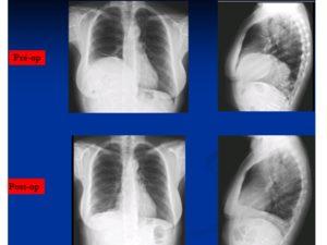 Image médicale : Traitement des maladie du diaphragme