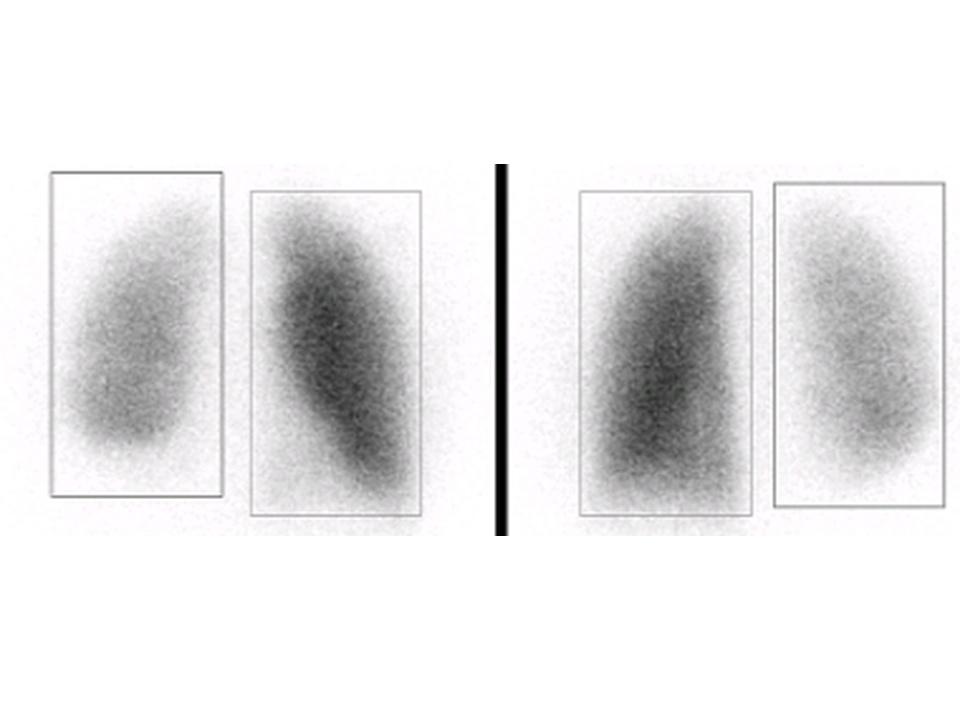 Image médicale : Scintigraphie pulmonaire