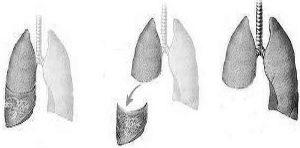 Image médicale : Lobectomie pulmonaire