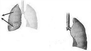 Image médicale : Pneumonectomie et alternatives