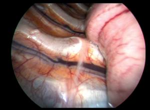 Image médicale : Sympathectomie toracique